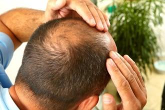 Мифы о выпадении волос и практические советы.